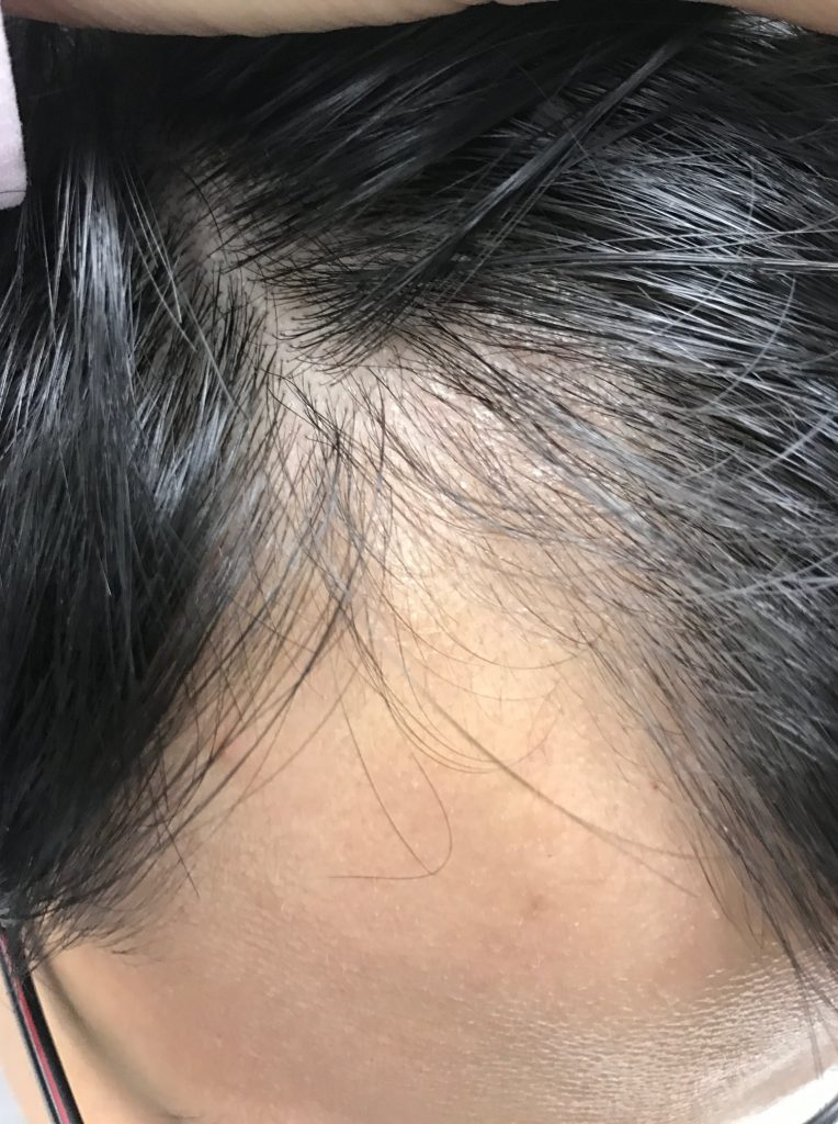 hair after treatment